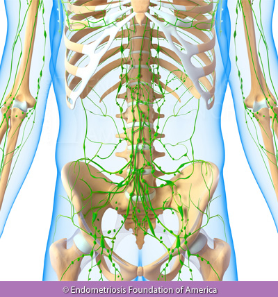 Endometriosis involvement with the lymphatic system