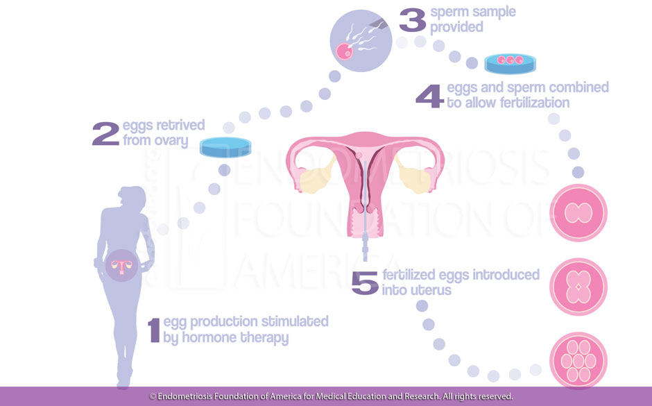 Endometriosis, Fertility And Infertility, Endometriosis