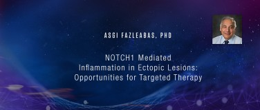 Asgi Fazleabas, PhD - NOTCH1 Mediated Inflammation in Ectopic Lesions: Opportunities for Targeted Therapy