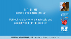 Laparoscopic Approach to Rectus Muscle Endometriosis and Inguinal Endometriosis - Ted Lee, MD