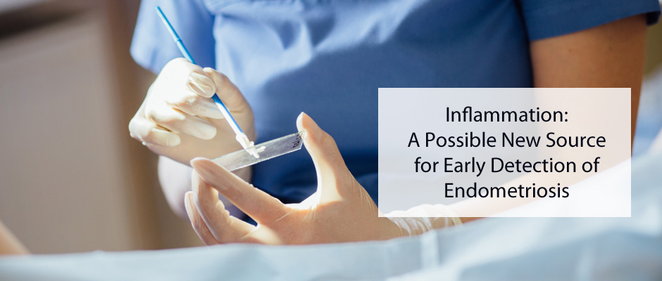 Inflammation: A Possible New Source for Early Detection of Endometriosis