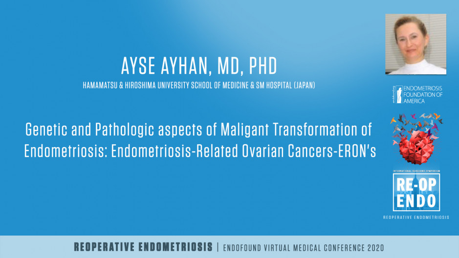 Genetic and Pathologic aspects of Maligant Transformation of Endometriosis: Endometriosis-Related Ovarian Cancers-ERON's - Ayse Ayhan, MD